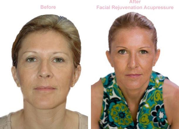 Before After Facial Rejuvenation Acupressure Facial Rejuvenation Acupressure Cheap Natural Skin Care