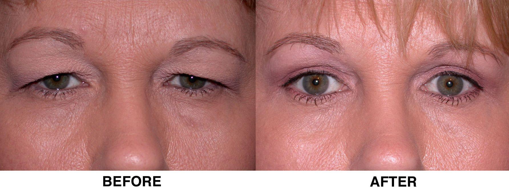 Andersen Eye Saginaw Surgical Blepharoplasty Eyelid Surgery