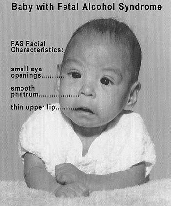 foetal alcohol syndrome foetal alcohol syndrome  foetal alcohol syndrome