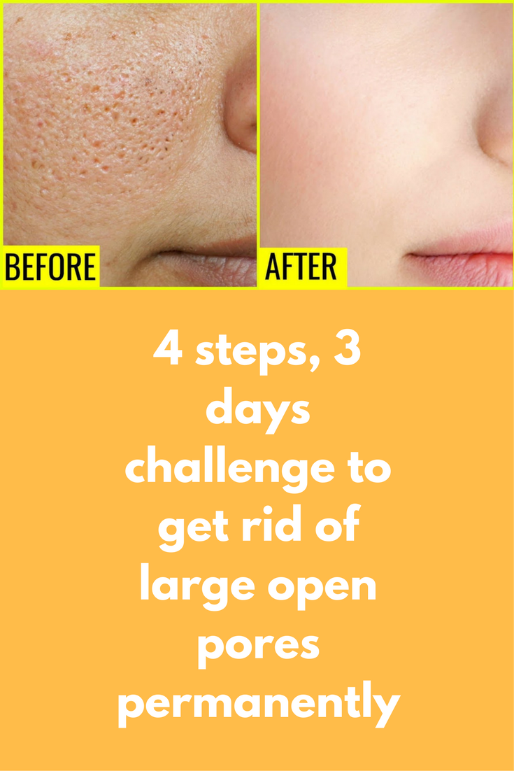 How to expand the pores