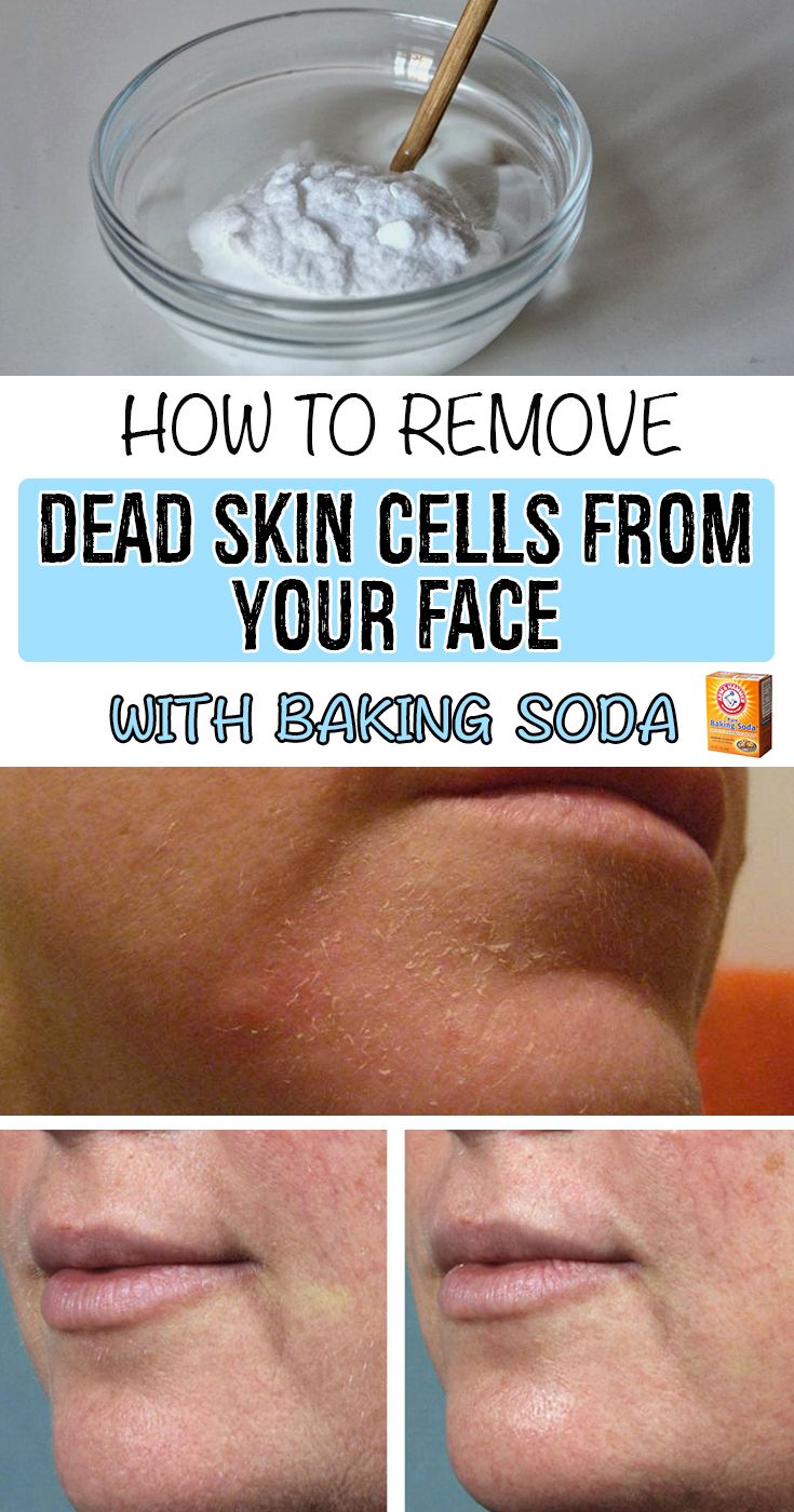 How to remove dead skin cells from your face with baking