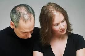 Facts about Men's Hair Loss and Women Hair loss