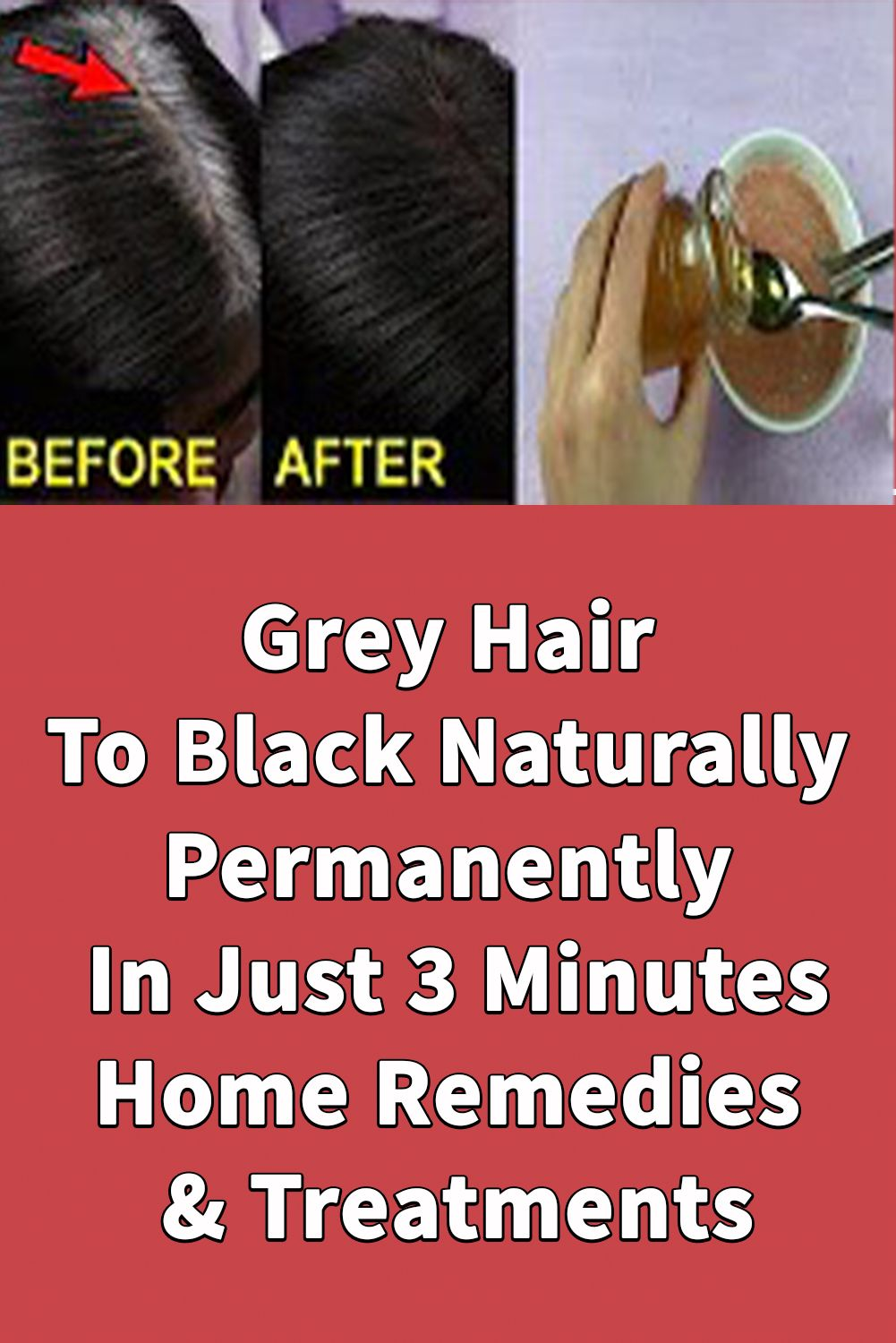 Grey Hair To Black Naturally Permanently In Just 3 Minutes Home Remedies Treatments In 2020 Black And Grey Hair Hair Dye Removal Grey Hair