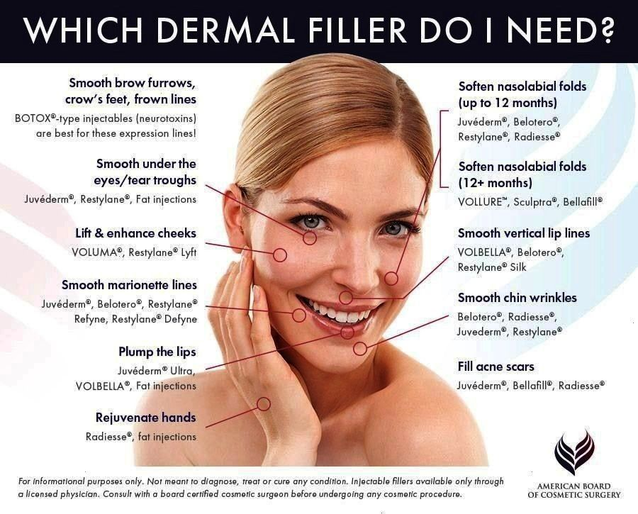 #dermalfillers #needshould #magazine #directly #fitness #fillers #ishould #dermal #womeni #popped #s...