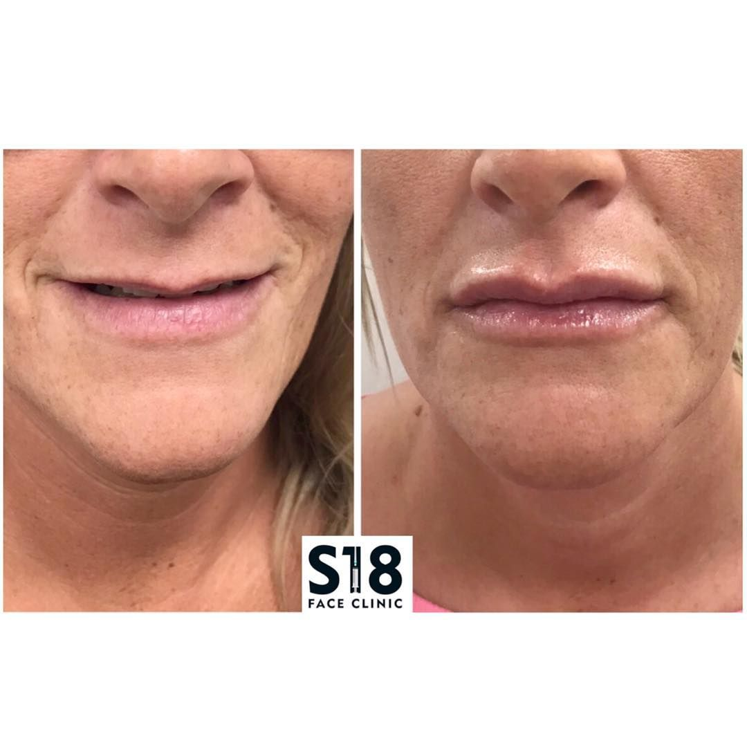 Nursing Jobs Near Me (With images) Exfoliating lip scrub