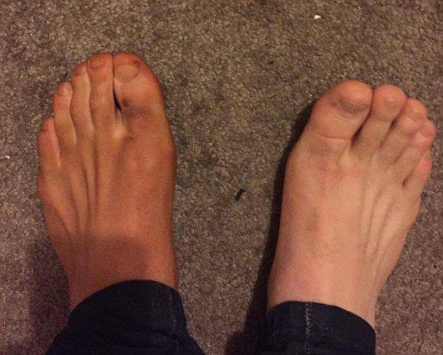 Não é tão ruim ... este pobre pé esquerdo desavisado foi dado um brilho leve  Read more: http://www.dailymail.co.uk/femail/article-4104836/Men-share-hilarious-pictures-feet-stained-deep-brown-reveal-women-lives-use-SOCKS-fake-tanning-mitts.html#ixzz4VUcqHZ1V  Follow us: @MailOnline on Twitter | DailyMail on Facebook    Not so bad...this poor unsuspecting left foot was given a light bronzing...
