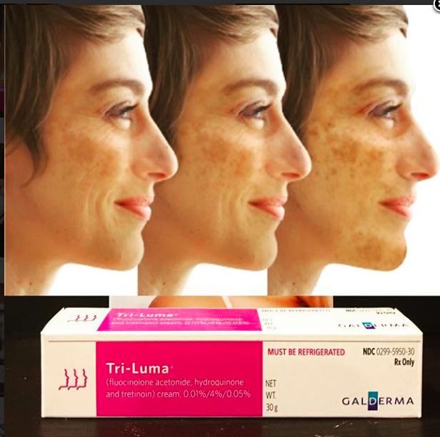 Pin on Skin & Beauty