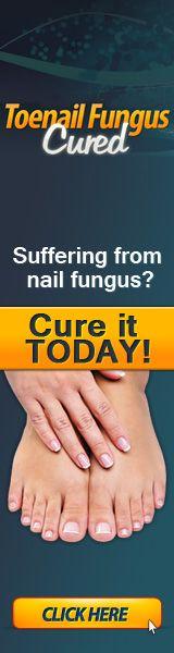 Fungal Infection? (#1 FINGERNAIL FUNGUS TREATMENT) Toenail Fungus Cure  160x600