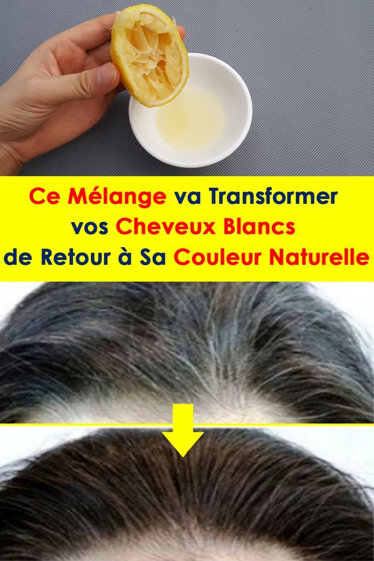 Photo of This blend will transform your white hair back to normal …