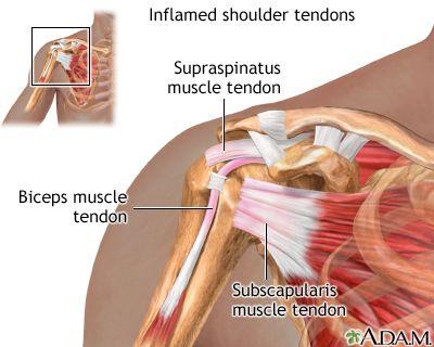 Inflamed Shoulder Tendons Medicina Pinterest Shoulder Rotator