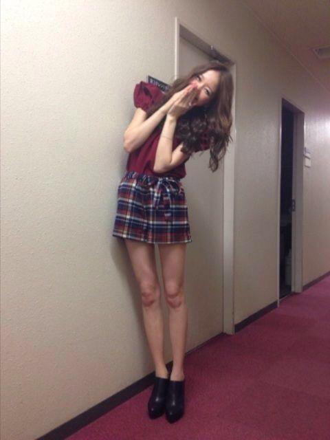 鹿沼憂妃のスカート画像