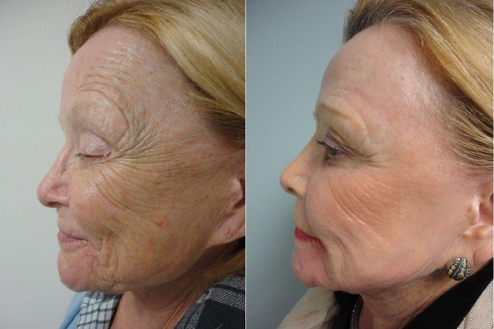 Brilliant Co2 Laser Skin Resurfacing Ikuzo Anti Aging Laser Skin Resurfacing Skin Resurfacing Co2 Laser Resurfacing