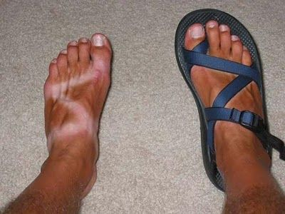e324c19e0358b Tan lines by Chaco sandals - I ve had this line quite a lot. I have  rheumatoid arthritis that affects my metatarsals quite a lot