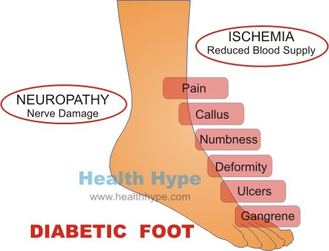 Untreated Diabetes Mellitus Consequences And Symptoms Healthhype