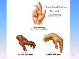 Ape Hand Deformity Wrist Drop Claw Ot Info Hands Therapy