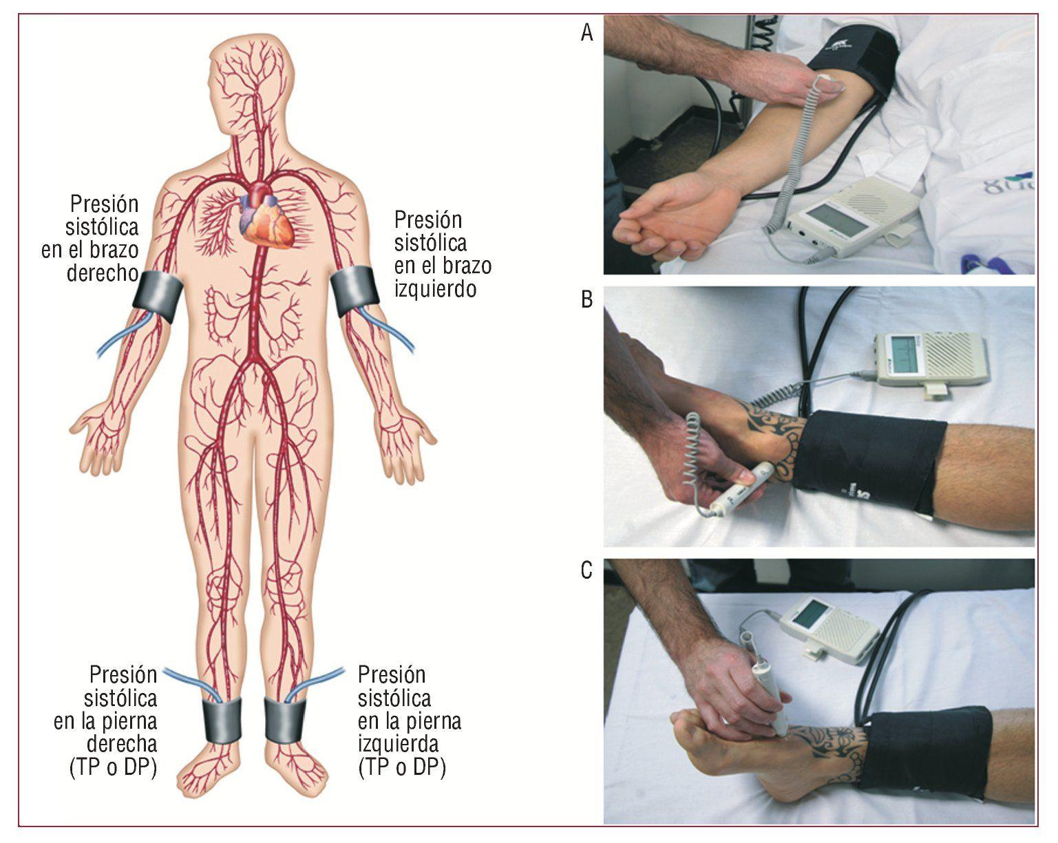 Métodos Diagnósticos De La Enfermedad Arterial Periférica Importancia Del índice Tobillo Brazo Como Técn Enfermedad Arterial Periférica Enfermedad Cardiología