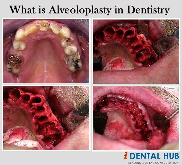 I just did this today on a couple of patients! Alveoloplasty refers to the shaping of alveolar process using surgical methods. It is done if a person has bony projections, sharp crestal bones or undercuts.