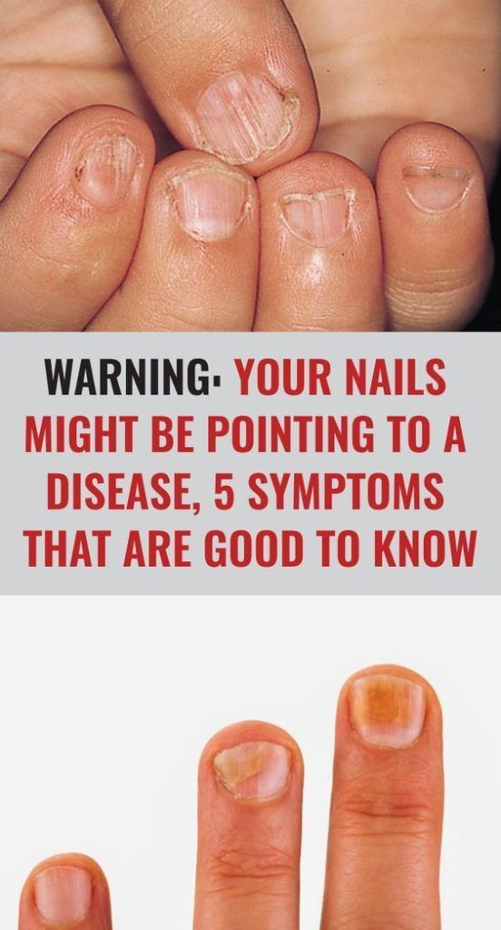 Warning: Your Nails Might Be Pointing To A Disease, 5 Symptoms That Are Good…