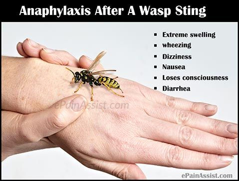 Fine Wasp Sting Home Remedies For Itchy Skin Wasp Sting Interior Design Ideas Tzicisoteloinfo