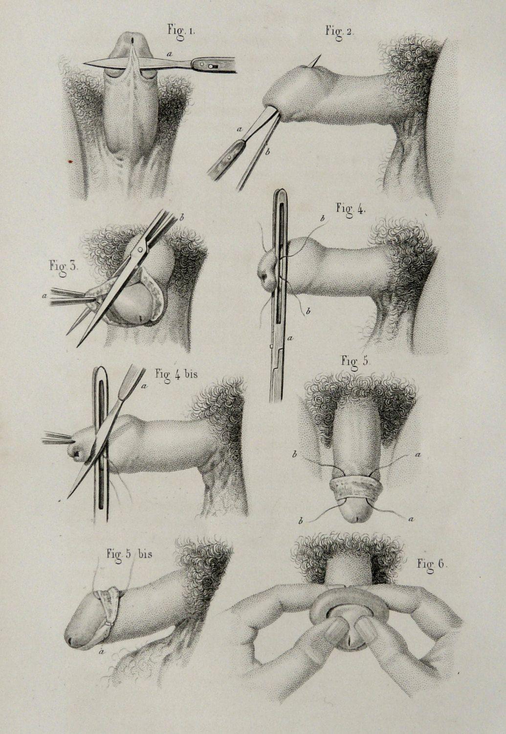 1857 Antique Bizarre Print Of Human Anatomy Urology Human Pennis