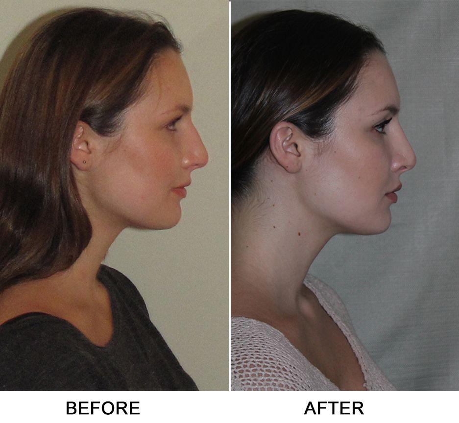 Turbinate Reduction, Septoplasty | Plastic surgery procedures, Nose surgery,  Plastic surgery