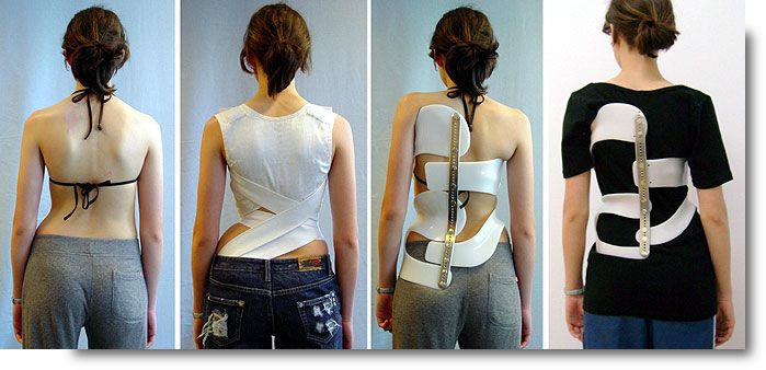 Image result for Scoliosis Braces