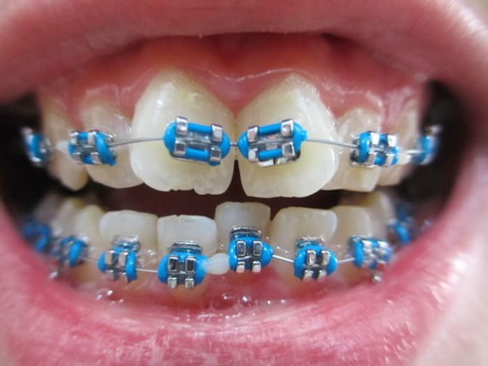 how to put fake braces on your teeth