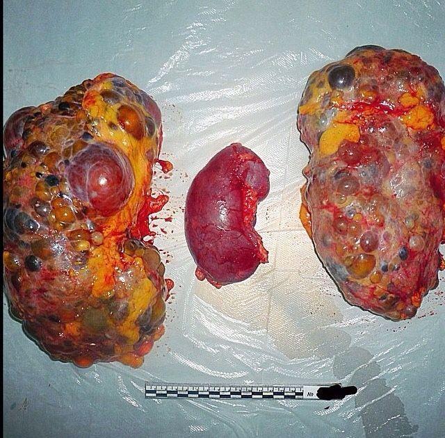 Polycystic Kidney Vs Normal Kidney In Polycystic Kidney