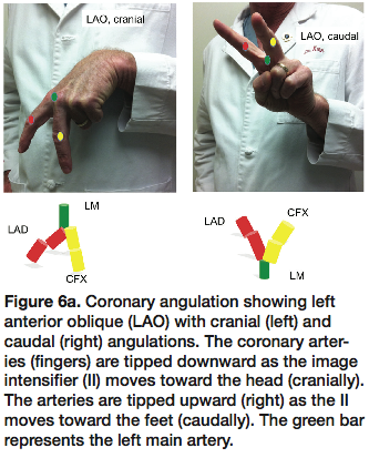 Notes from the Editor's Corner of Cath Lab Digest by Kern ...