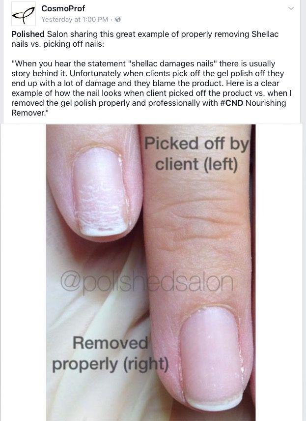 Correct Removal Of Gel Polish No Damage To Nail Damaged Nails Nails Shellac Nails