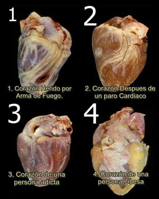 Hearth | Nursing | Pinterest