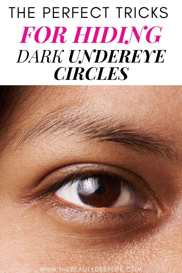 How to get rid of dark circles under the eyes…lifestyle ...