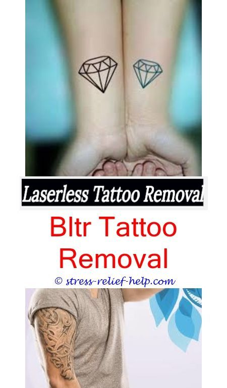 Tattoo Lightening How To Start A Removal Business Uk Many Tattoos Has Kat Von D Removed Laser Tatto All About Removing Your