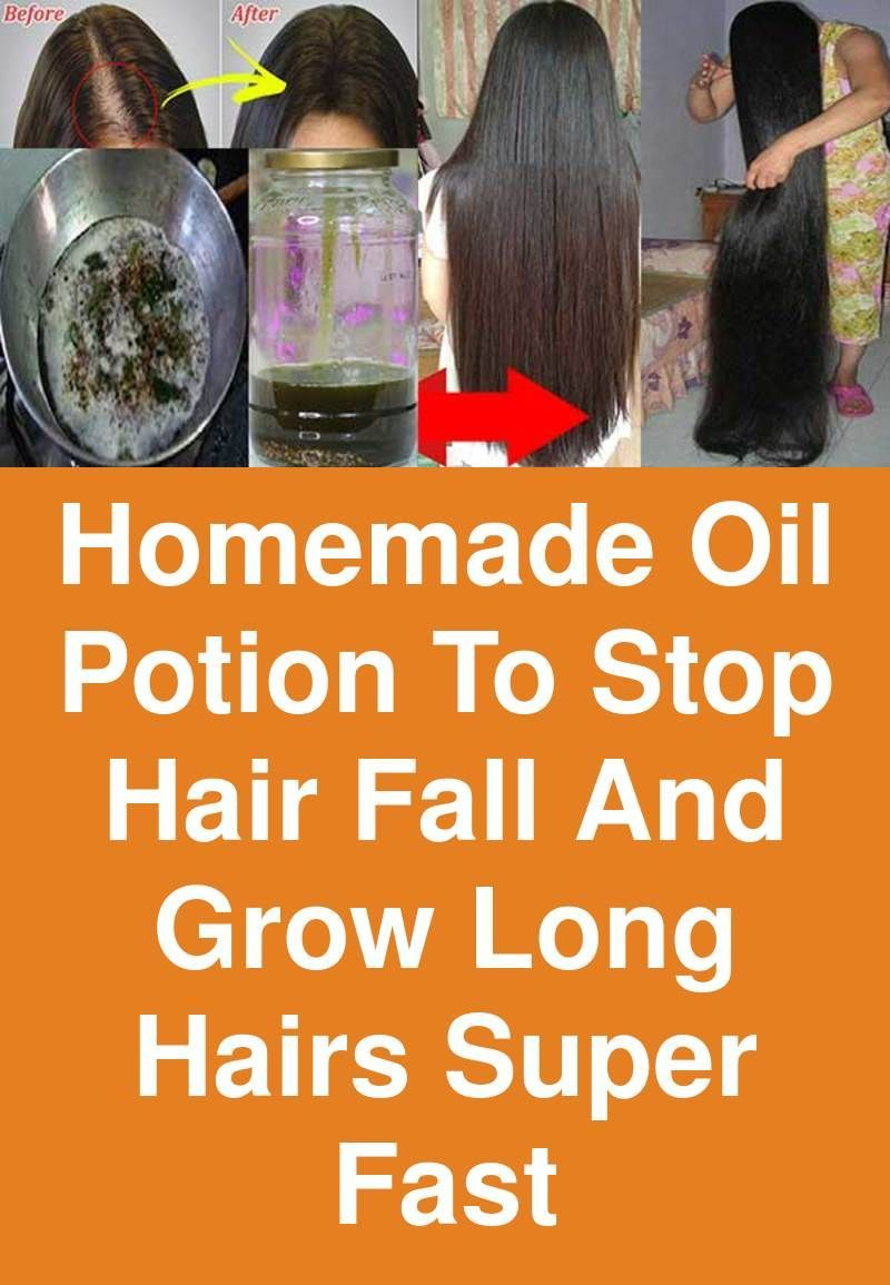 Homemade Oil Potion To Stop Hair Fall And Grow Long Hairs Super Fast Hair Loss Impulsive Graying Plus Baldness Have Beco Grow Long Hair Fall Hair Homemade Oil