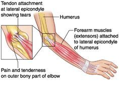 Radial Tunnel Syndrome - burning pain in lateral forearm due to ...