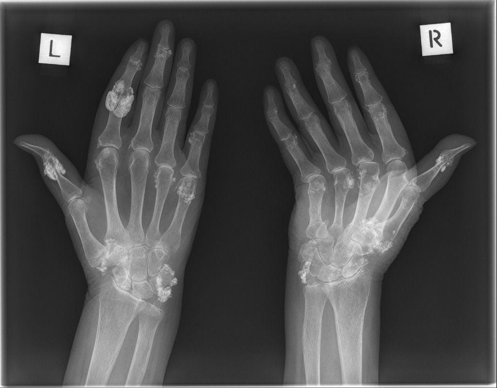Systemic Sclerosis Radiology Case Radiopaedia Org