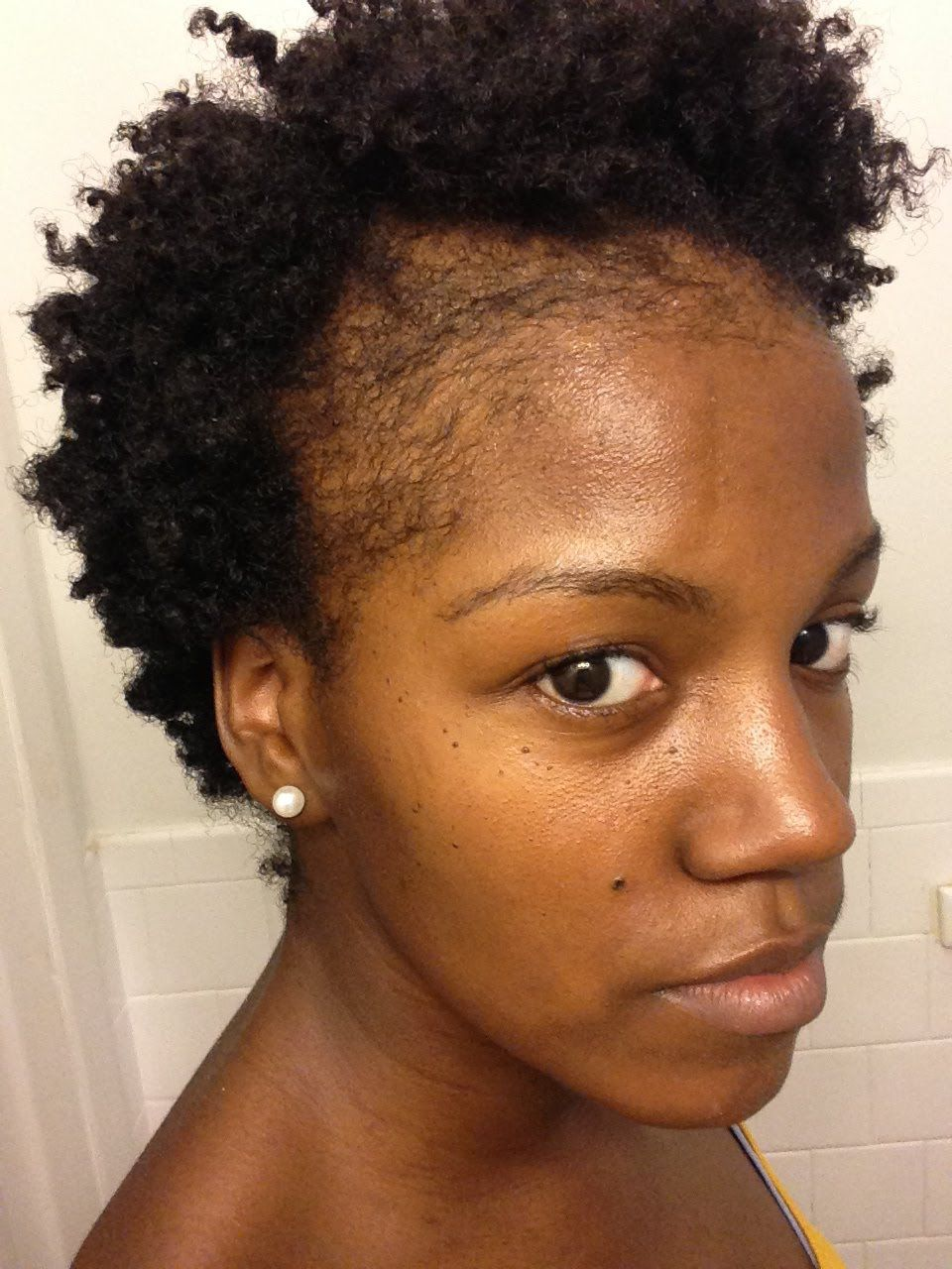 Black Hairstyles For Thin Edges Alluring Natural Hair  Thinning Edges  How To Grow Edges And Bald Spots