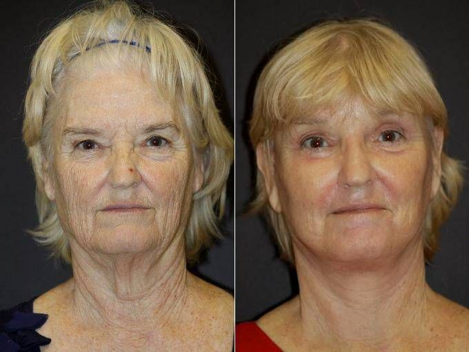 Face Neck Lift Patient - Before & After Photos  By Doctor