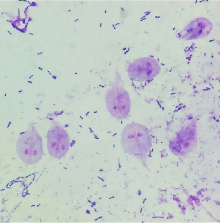 Giardia cytology, Giardia cytology.