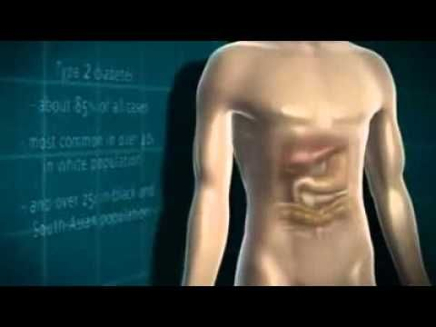 Diabetes Mellitus - YouTube | rescate | Pinterest
