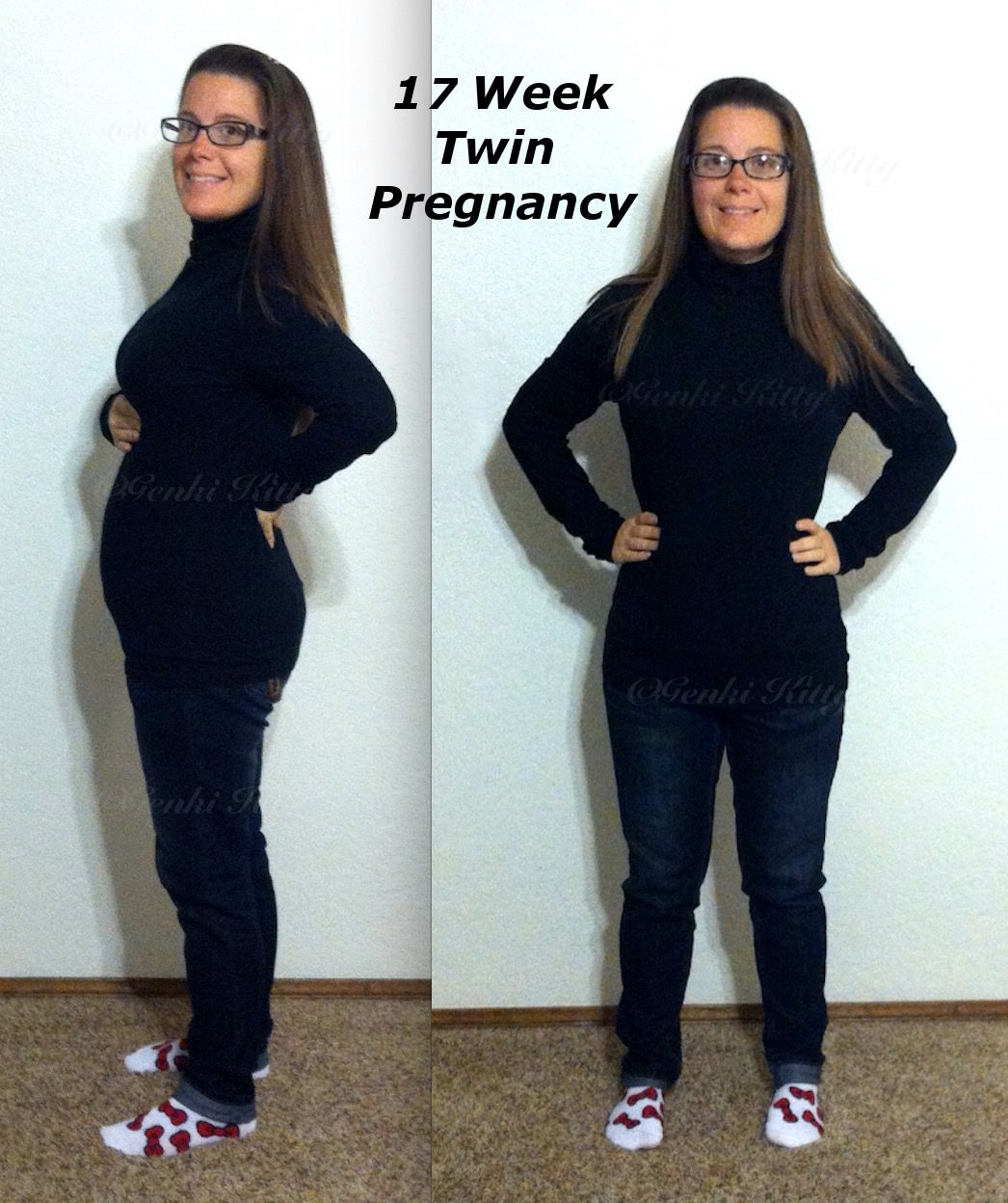 17 weeks twin pregnancy belly bump