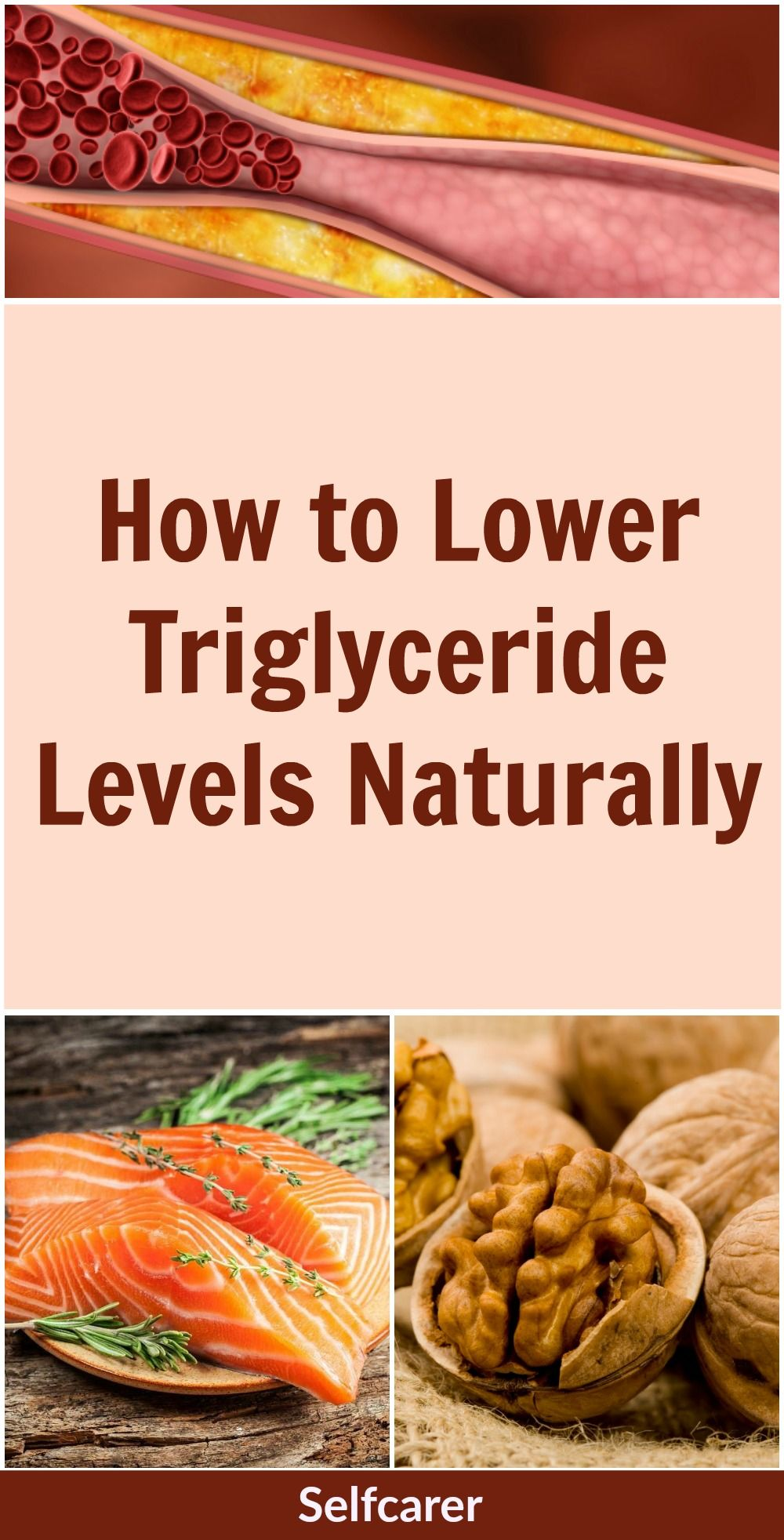 How to Lower Triglyceride Levels Naturally Lower