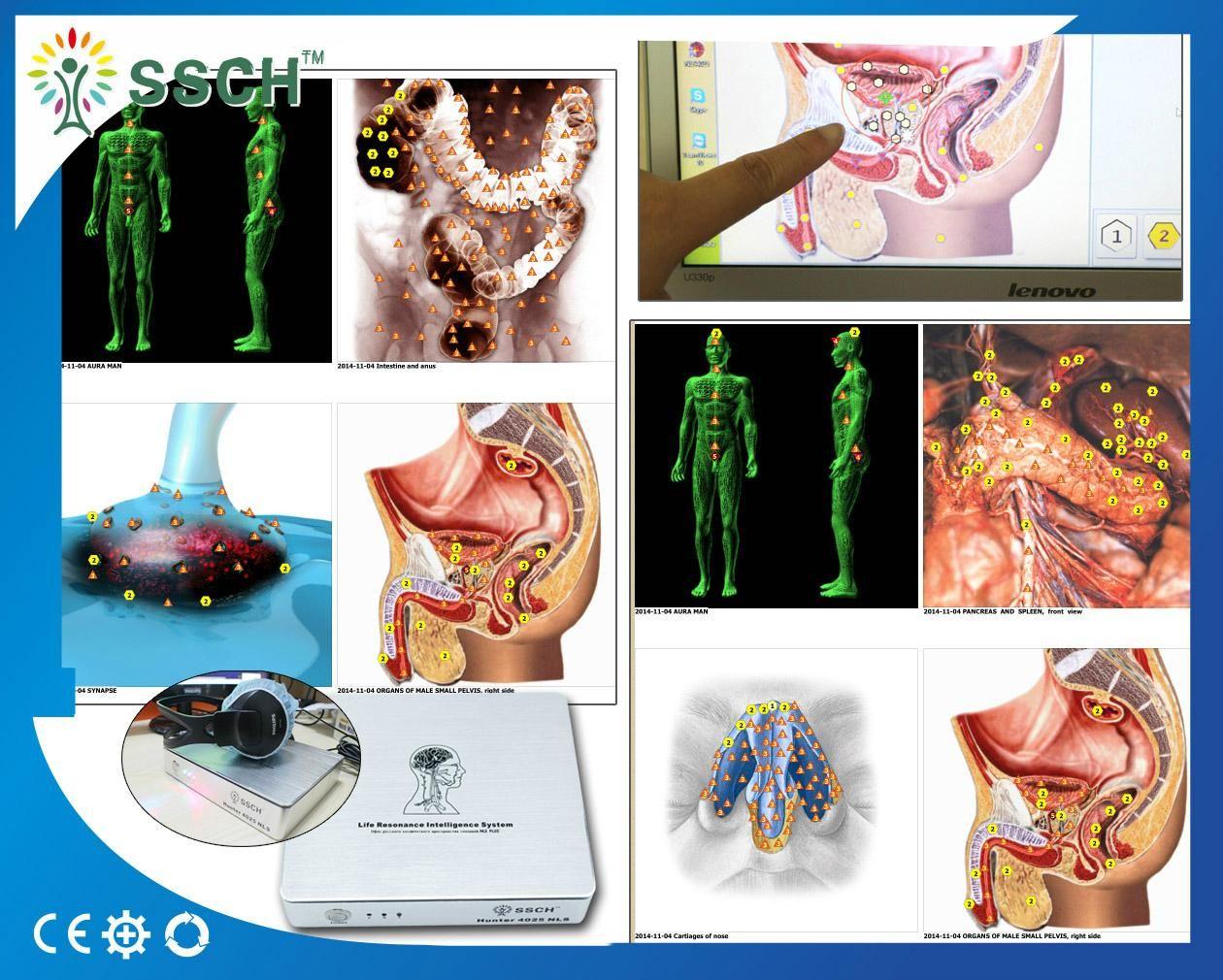 2016 recommend bioresonance diagnostics Metatron Hunter device