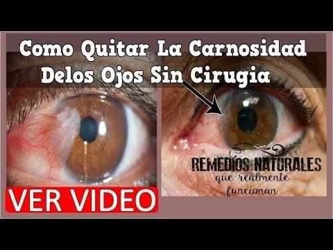 53f4aa9a5a Como Quitar La Carnosidad Delos Ojos Sin Cirugia, Pterigion Tratamiento  Natural,Terigios En Los Ojos - YouTube