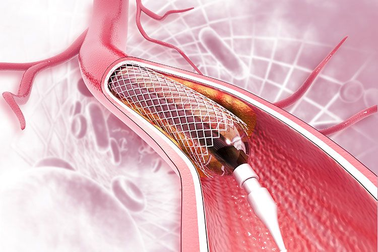 What is a stent and why you would need one?
