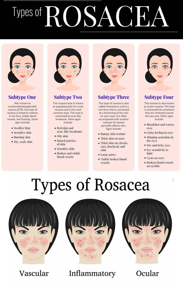 What Is Rosacea And Are There Any Rosacea Treatments In 2020