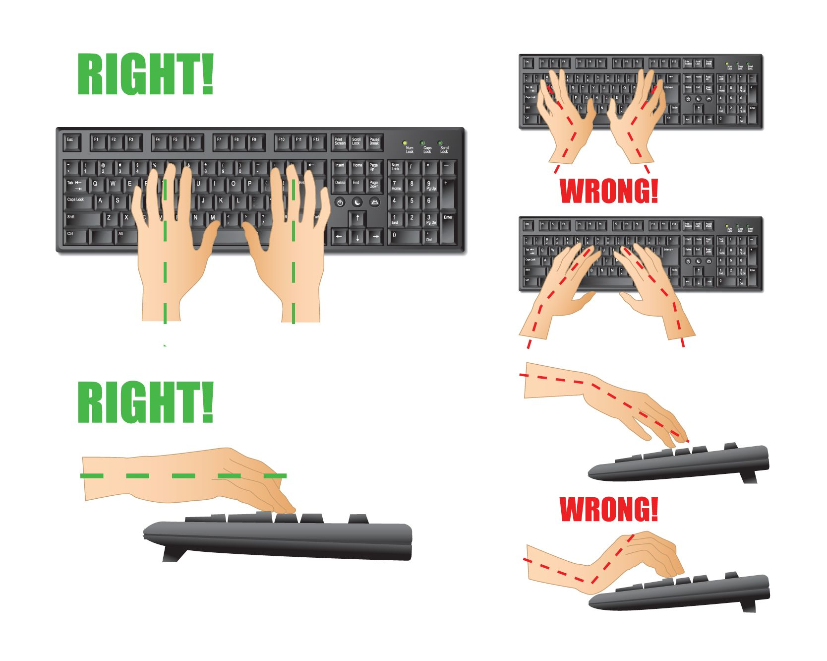 Image result for repetitive strain injury posture