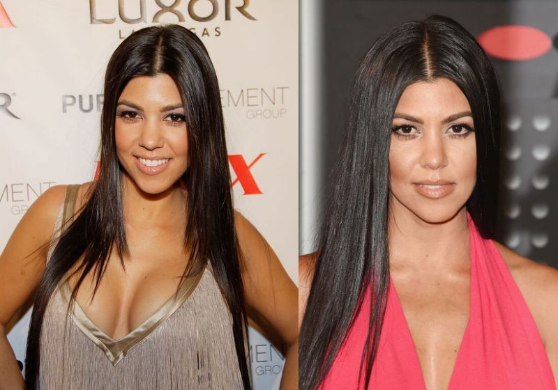 How much does it cost to look like a kardashian