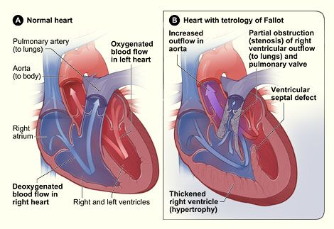 Tetralogy of fallot in newborns chest x ray google search congenital heart defect tetralogy of fallot this is what tonys heart looked like before his open heart surgery june ccuart Choice Image