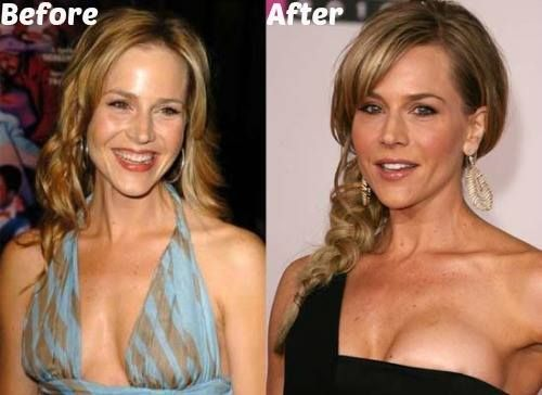 E Breast Implants Before And After Julie Benz Plastic Sur...